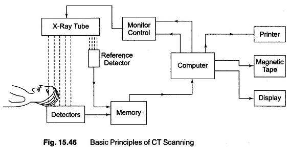 CT Scan Basic Principle